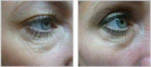 Before and after of lower eye using skintyte treatment