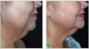 Before and after of a woman's neck skintyte treatment