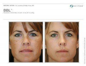 Woman's face before and after BBL treatment