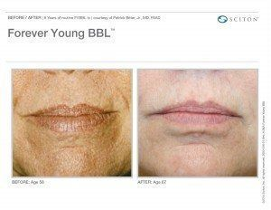 Woman's mouth before and after of Forever Young BBL treatment
