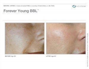 Before and after of woman's cheek for Forever Young BBL treatment