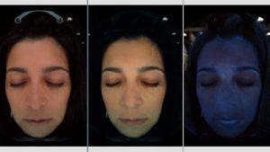 A woman's optic skin analysis