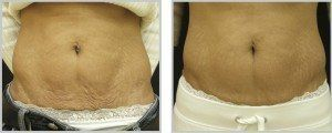 Before and after of a womans stomach skintyte treatment