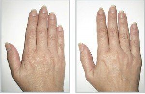 Before and after of a woman's hand skintyte treatment