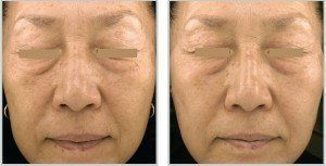 Before and after of a woman's face skintyte treatment