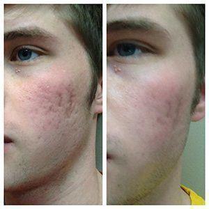 Before & After Rejuvapen