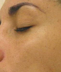 Hyperpigmentation after Hydrafacial